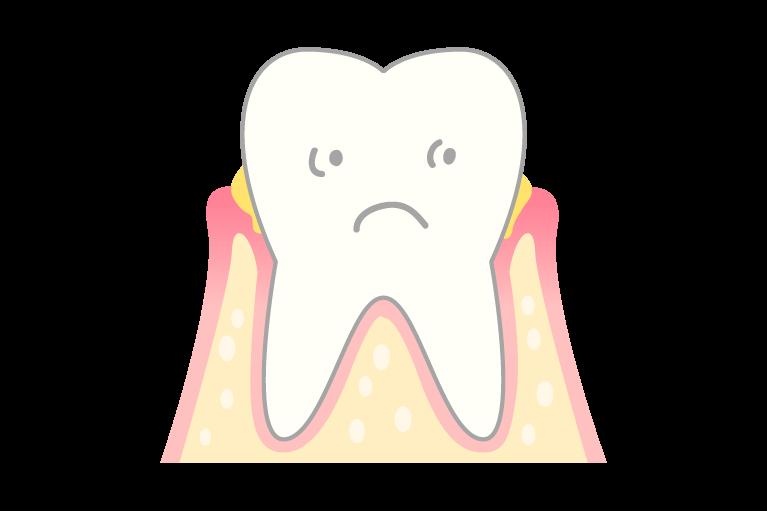 歯周病を増殖させる「バイオフィルム」